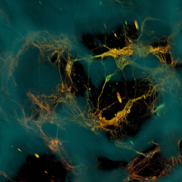 The neurons formed functional networks throughout the scaffold pores (dark areas). Credit: Image courtesy of Tufts University.